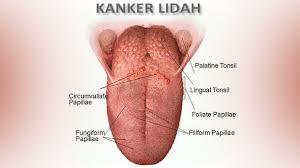 Pengobatan Tradisional Kanker Lidah
